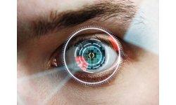 14036251 laser scanning eye close up