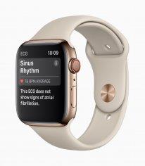 Apple Watch Series4 ECG SinusRhythm 09122018